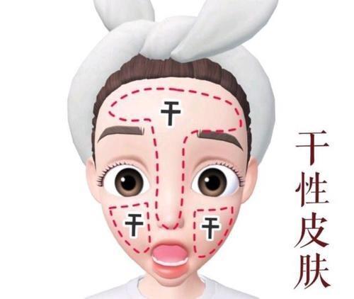 什么皮肤是干性皮肤,干性皮肤应该怎么做-第1张图片-爱薇女性网