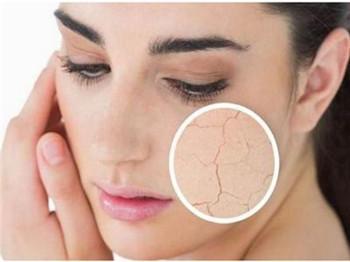 什么皮肤是干性皮肤,干性皮肤应该怎么做-第3张图片-爱薇女性网