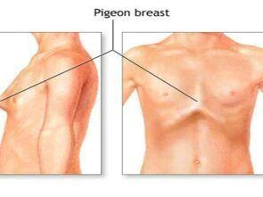 鸡胸和正常人区别图片 怎么判断是不是鸡胸-第2张图片-爱薇女性网