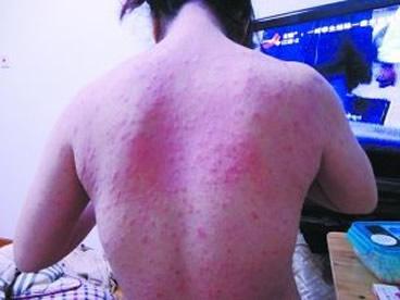 人身上被螨虫咬的图片,人被螨虫咬的5大症状