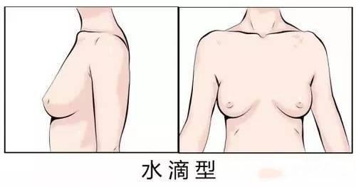 水滴形乳房图片:水滴胸形要如何选择文胸-第2张图片-爱薇女性网