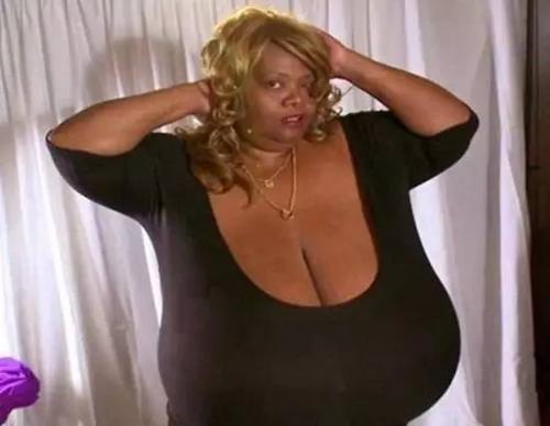 世界上胸最大的女人:安妮·霍金斯特纳天然大胸重达77斤