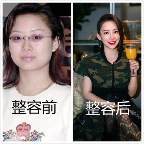 九球天后潘晓婷整容前后照片对比-第2张图片-爱薇女性网