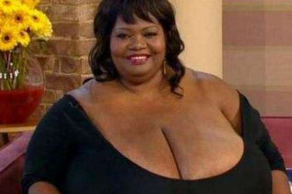 世界上最大的胸部:胸围102zzz,重达38.5公斤-第1张图片-爱薇女性网