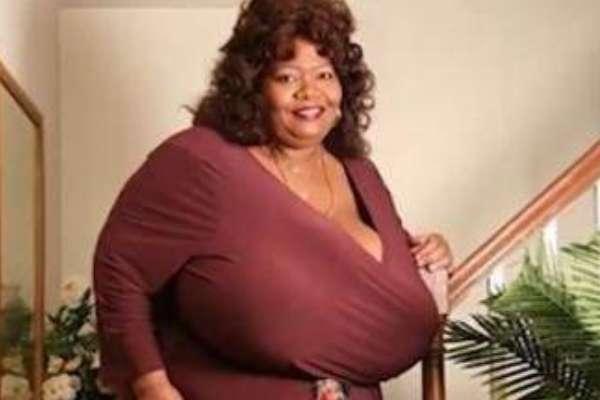 世界上最大的胸部:胸围102zzz,重达38.5公斤-第3张图片-爱薇女性网