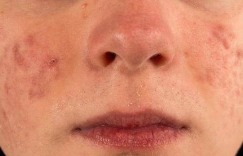 螨虫脸有哪些特征?如何去除脸上的螨虫-第2张图片-爱薇女性网