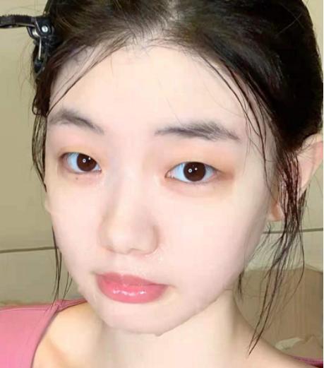 螨虫脸有哪些特征?如何去除脸上的螨虫-第4张图片-爱薇女性网