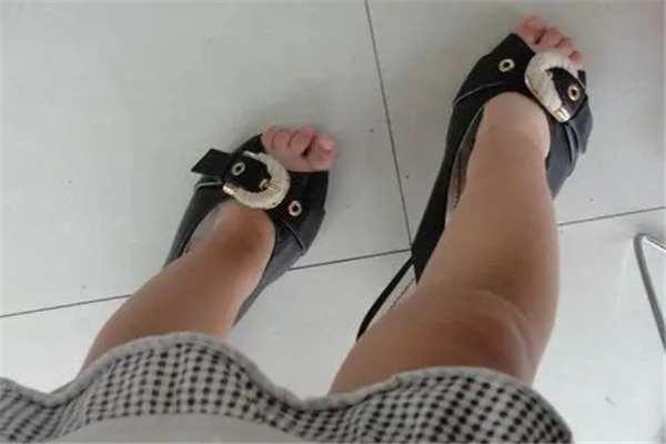 小孩穿高跟鞋的危害:限制足部发育,容易引起扁平足-第3张图片-爱薇女性网